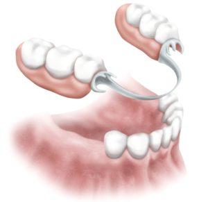 removable-partial-denture__1__2-1148x1114-dm-crop_0_41_1148_1114_glk4