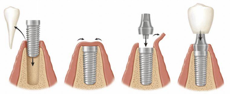 implantaciya