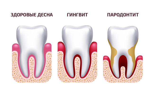 parodontit-_2_