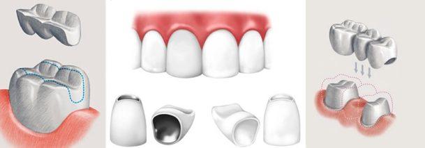 как надевать зубные виниры